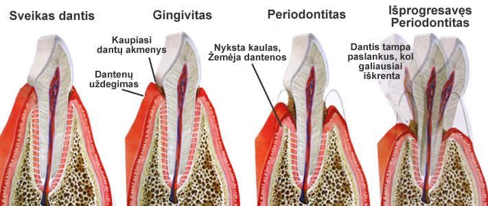 periodontologija2